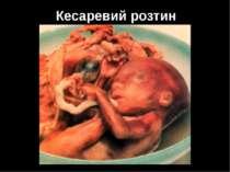 Кесаревий розтин