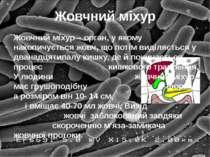 Жовчний міхур Жовчний міхур – орган, у якому накопичується жовч, що потім вид...