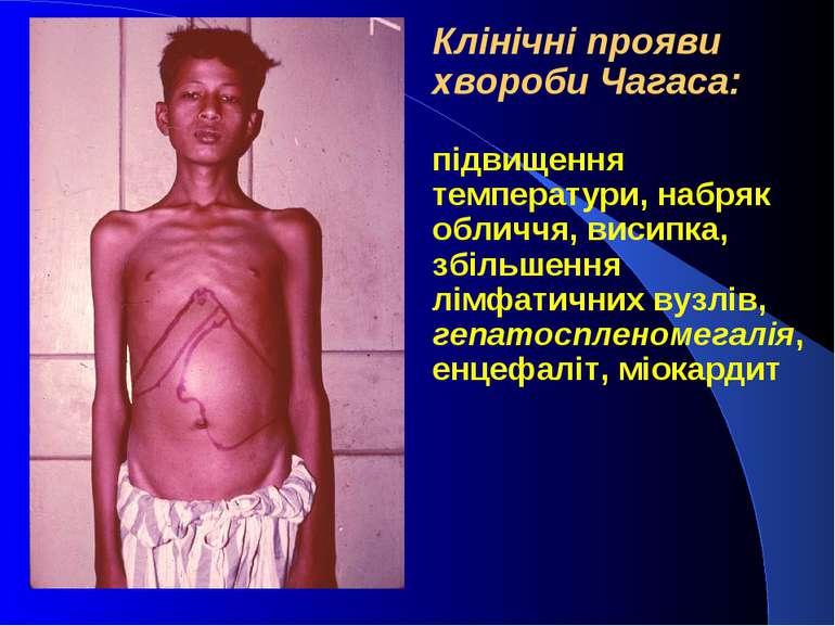 Клінічні прояви хвороби Чагаса: підвищення температури, набряк обличчя, висип...
