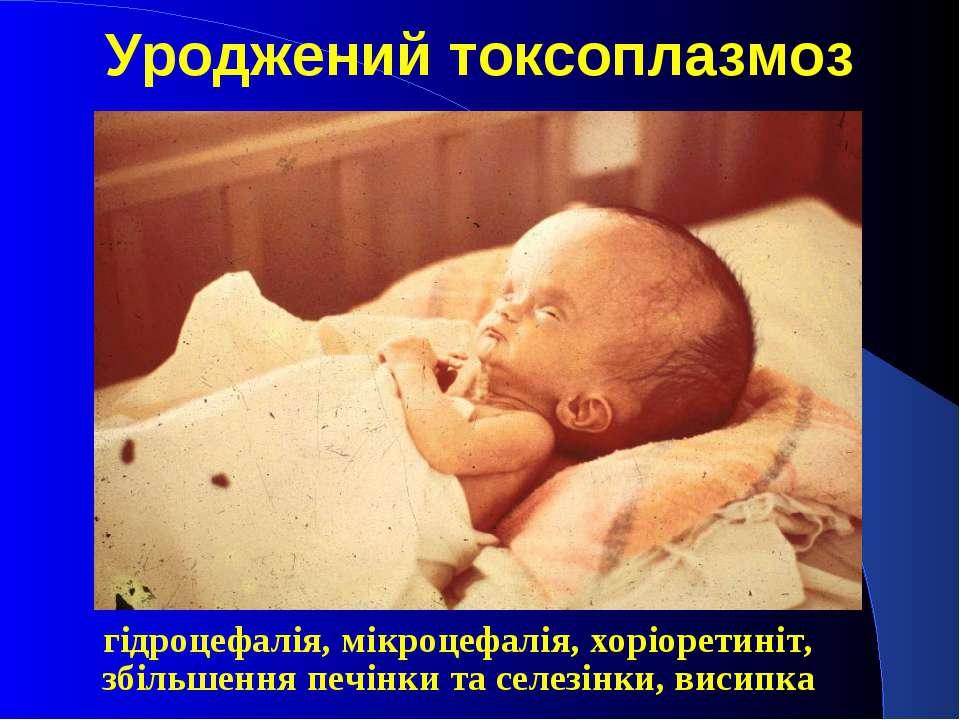Токсоплазмоз симптомы у беременной 42