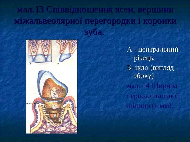 мал.13 Співвідношення ясен, вершини міжальвеолярної перегородки і коронки зуб...