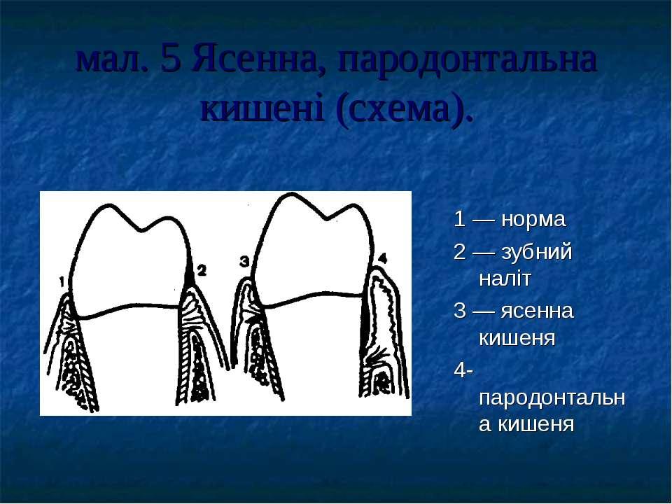 мал. 5 Ясенна, пародонтальна кишені (схема). 1 — норма 2 — зубний наліт 3 — я...