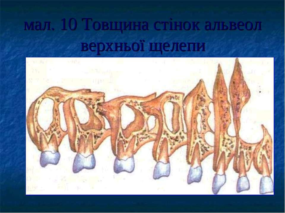 мал. 10 Товщина стінок альвеол верхньої щелепи