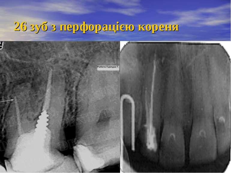 26 зуб з перфорацією кореня