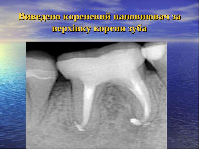 Виведено кореневий наповнювач за верхівку кореня зуба