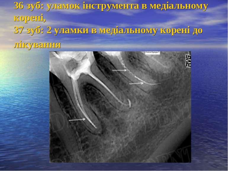 36 зуб: уламок інструмента в медіальному корені, 37 зуб: 2 уламки в медіально...