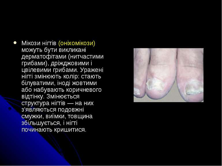 Мікози нігтів (оніхомікози) можуть бути викликані дерматофітами (нитчастими г...