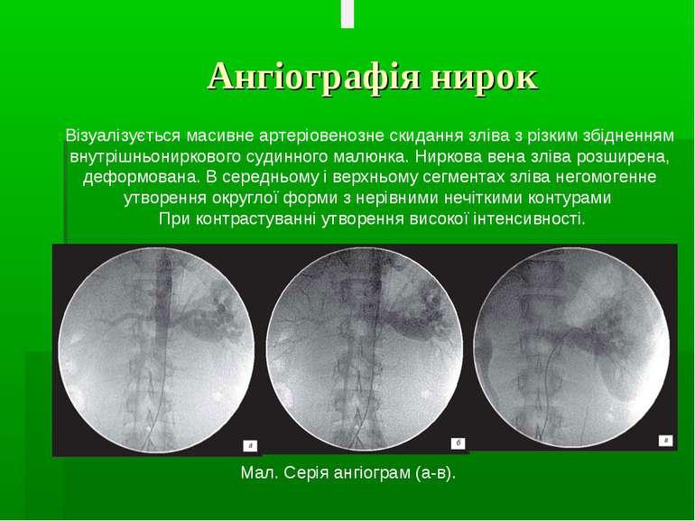 Ангіографія нирок Візуалізується масивне артеріовенозне скидання зліва з різк...