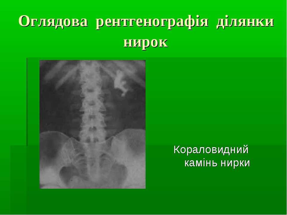 Оглядова рентгенографія ділянки нирок Кораловидний камінь нирки