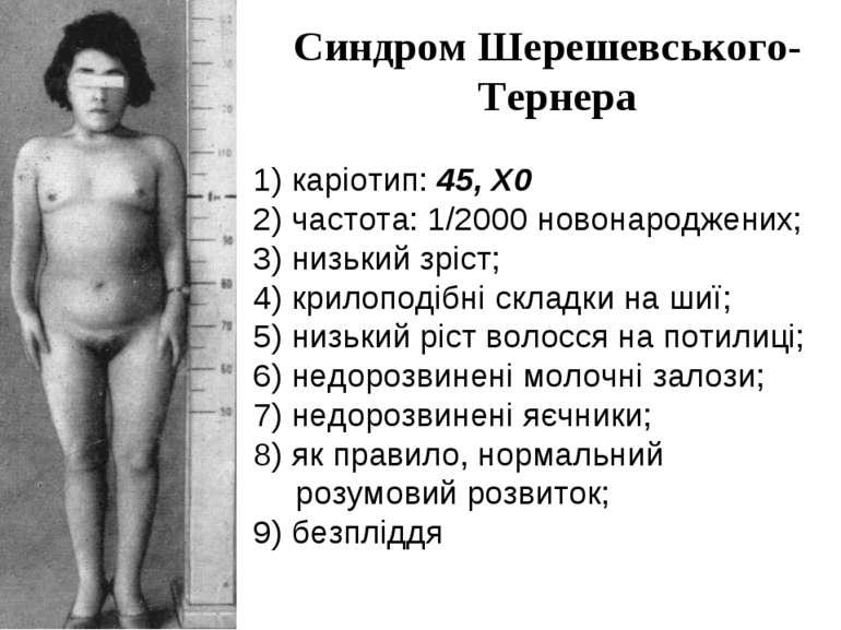 Синдром Шерешевського-Тернера 1) каріотип: 45, X0 2) частота: 1/2000 новонаро...