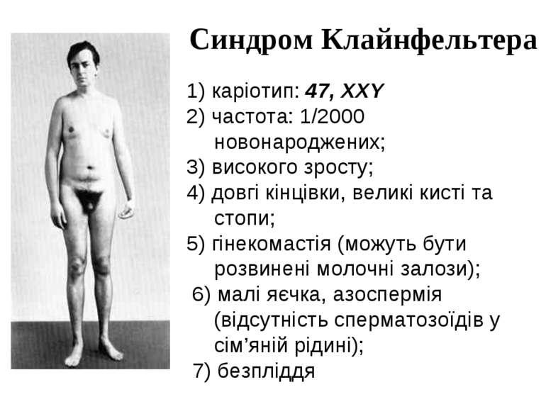 Синдром Клайнфельтера 1) каріотип: 47, XXY 2) частота: 1/2000 новонароджених;...