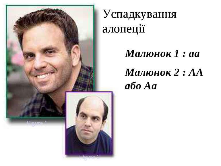 Figure 1 Figure 2 Малюнок 2 : AA або Aa Малюнок 1 : aa Успадкування алопеції