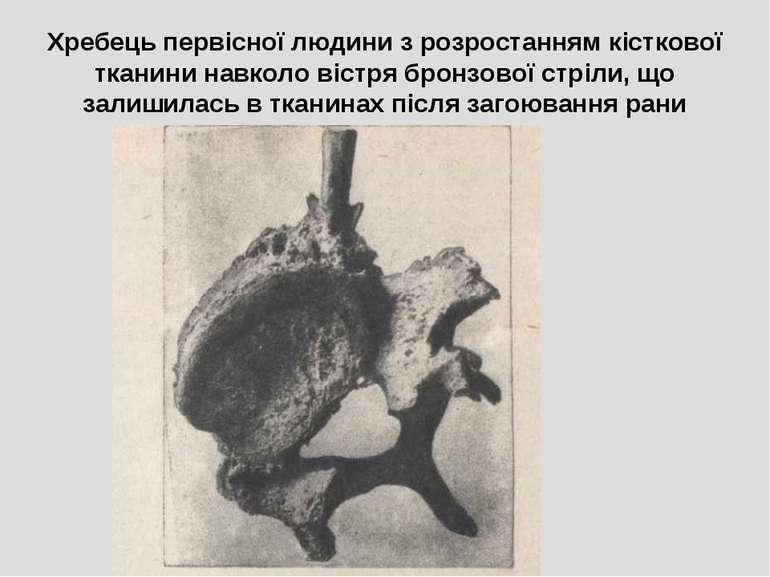 Хребець первісної людини з розростанням кісткової тканини навколо вістря брон...