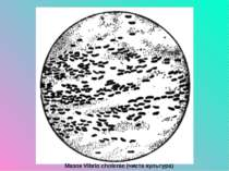 Мазок Vibrio cholerae (чиста культура)