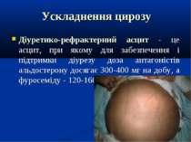 Ускладнення цирозу Діуретико-рефрактерний асцит - це асцит, при якому для заб...