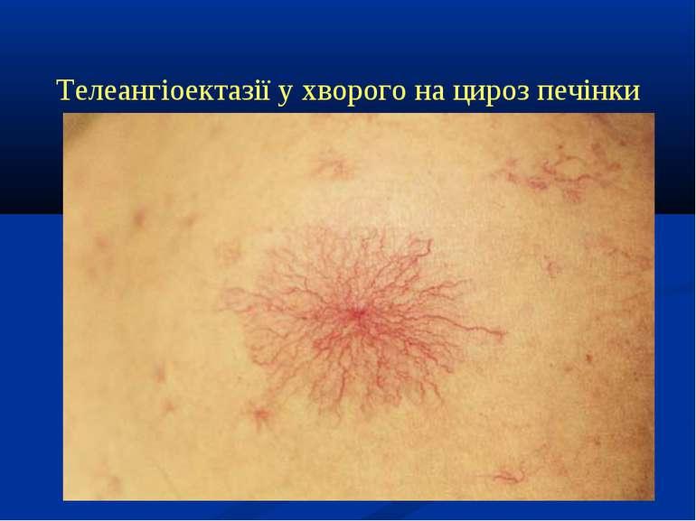 Телеангіоектазії у хворого на цироз печінки