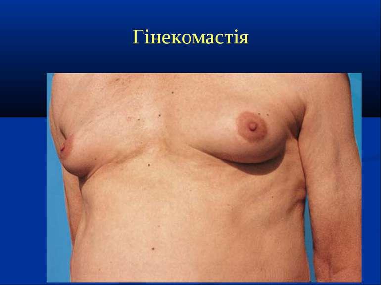 Гінекомастія