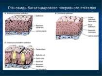 Різновиди багатошарового покривного епітелію