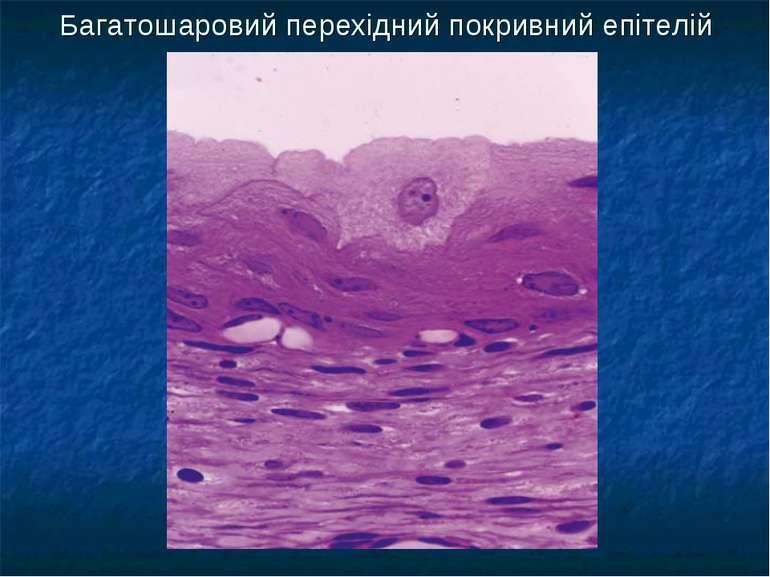 Багатошаровий перехідний покривний епітелій