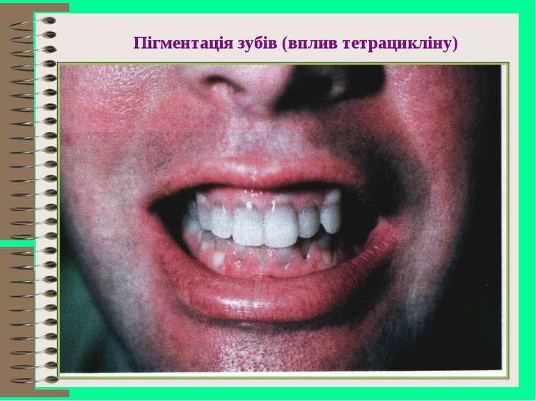 Пігментація зубів (вплив тетрацикліну)