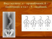 Вид сколіозу: а – правобічний; б – лівобічний; в та г – S –подібний.