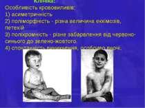 Клініка: Особливість крововиливів: 1) асиметричність 2) поліморфність - різна...