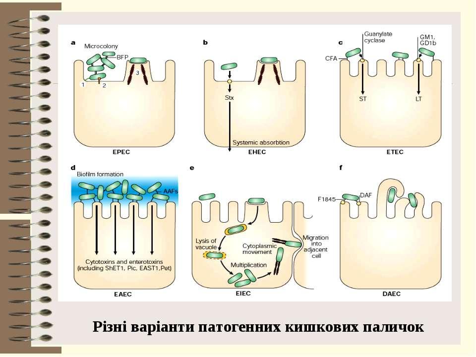Різні варіанти патогенних кишкових паличок