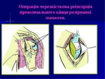 Операція черезкісткова реінсерція проксимального кінця розірваної манжети.
