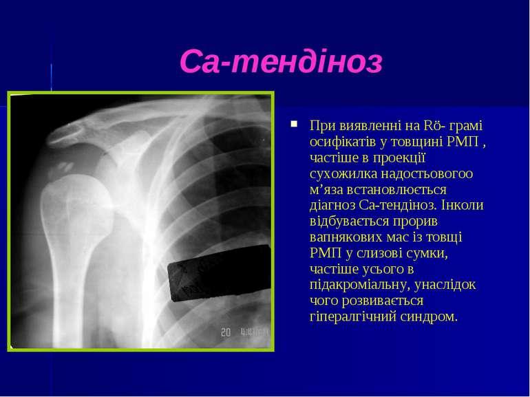 Са-тендіноз При виявленні на Rö- грамі осифікатів у товщині РМП , частіше в п...
