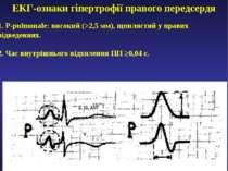 ЕКГ-ознаки гіпертрофії правого передсердя 1. P-pulmonale: високий (>2,5 мм), ...