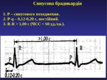 Синусова брадикардія 1. Р – синусового походження. 2. P-q – 0,12-0,20 с, пост...