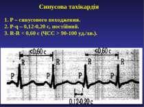 Синусова тахікардія 1. Р – синусового походження. 2. P-q – 0,12-0,20 с, пості...