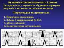Активні ектопічні комплекси і ритми Екстрасистола – передчасне збудження за р...