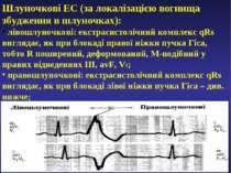 Шлуночкові ЕС (за локалізацією вогнища збудження в шлуночках): лівошлуночкові...
