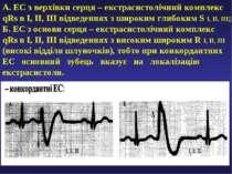 А. ЕС з верхівки серця – екстрасистолічний комплекс qRs в І, ІІ, ІІІ відведен...