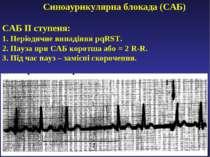 Синоаурикулярна блокада (САБ) САБ ІІ ступеня: 1. Періодичне випадіння pqRST. ...