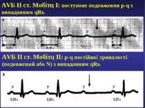 AVБ ІІ ст. Мобітц І: поступове подовження p-q з випаданням qRs. AVБ ІІ ст. Мо...