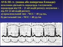 AVБ ІІІ ст. (повна або поперечна блокада): незалежна діяльність передсердь і ...