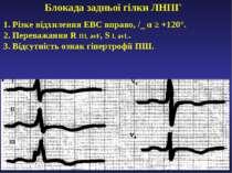 Блокада задньої гілки ЛНПГ 1. Різке відхилення ЕВС вправо, /_ α ≥ +120°. 2. П...