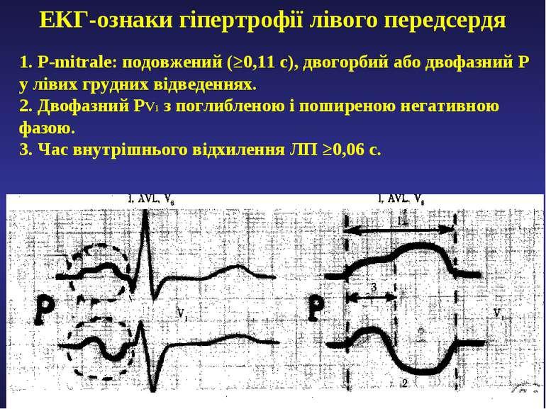 ЕКГ-ознаки гіпертрофії лівого передсердя 1. P-mitrale: подовжений (≥0,11 с), ...