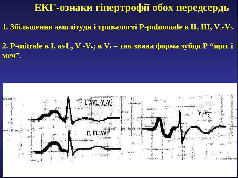 ЕКГ-ознаки гіпертрофії обох передсердь 1. Збільшення амплітуди і тривалості P...