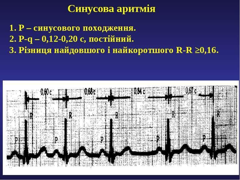 Синусова аритмія 1. Р – синусового походження. 2. P-q – 0,12-0,20 с, постійни...