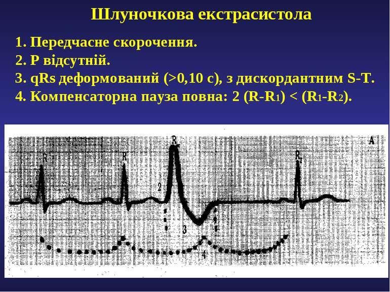 Шлуночкова екстрасистола 1. Передчасне скорочення. 2. Р відсутній. 3. qRs деф...