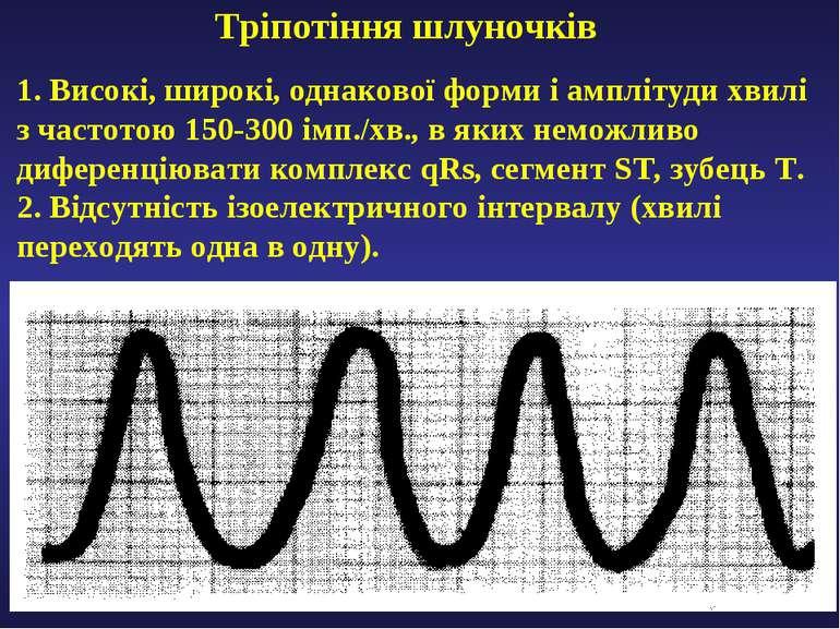 Тріпотіння шлуночків 1. Високі, широкі, однакової форми і амплітуди хвилі з ч...