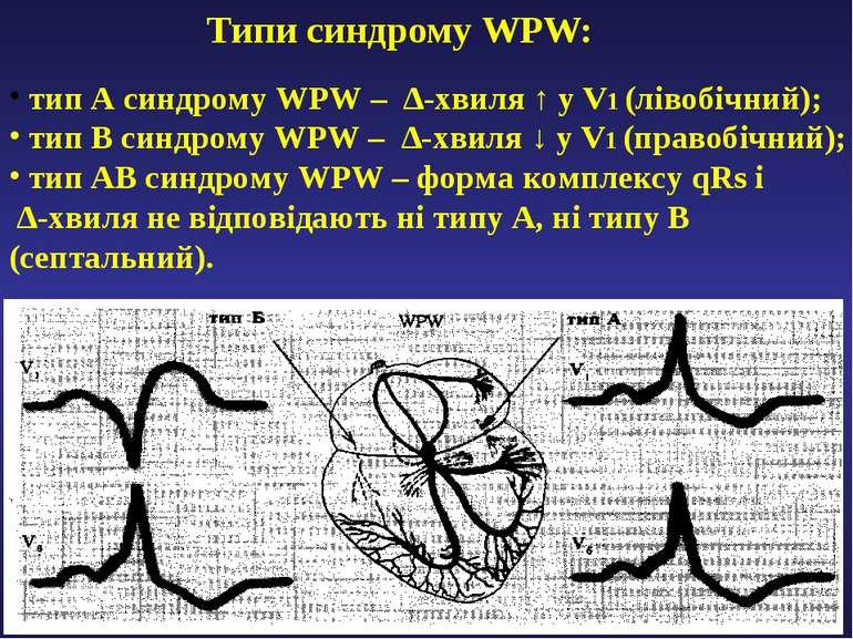 Типи синдрому WPW: тип А синдрому WPW – ∆-хвиля ↑ у V1 (лівобічний); тип В си...