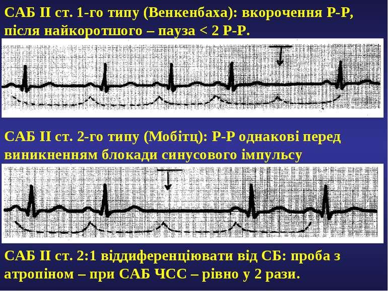 САБ ІІ ст. 1-го типу (Венкенбаха): вкорочення Р-Р, після найкоротшого – пауза...