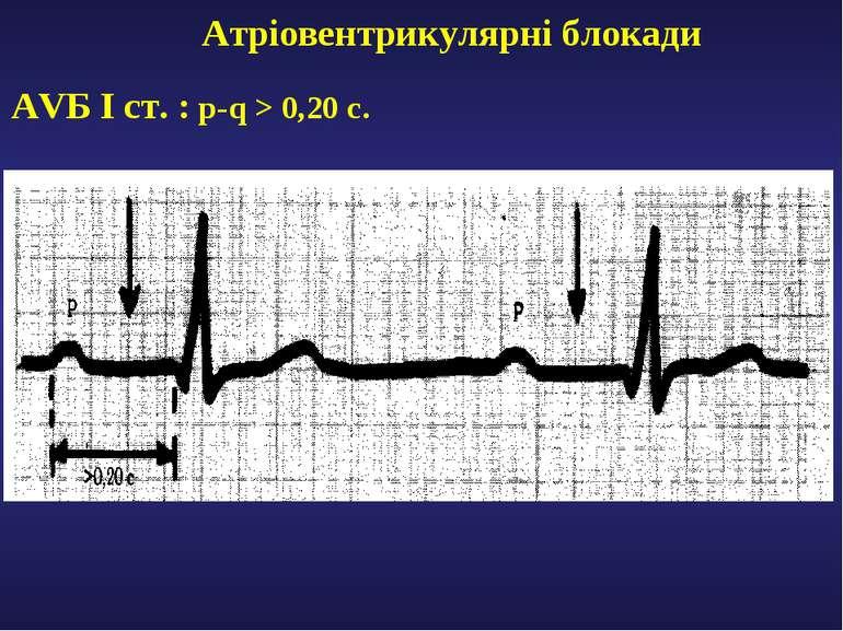 Атріовентрикулярні блокади AVБ І ст. : р-q > 0,20 c.