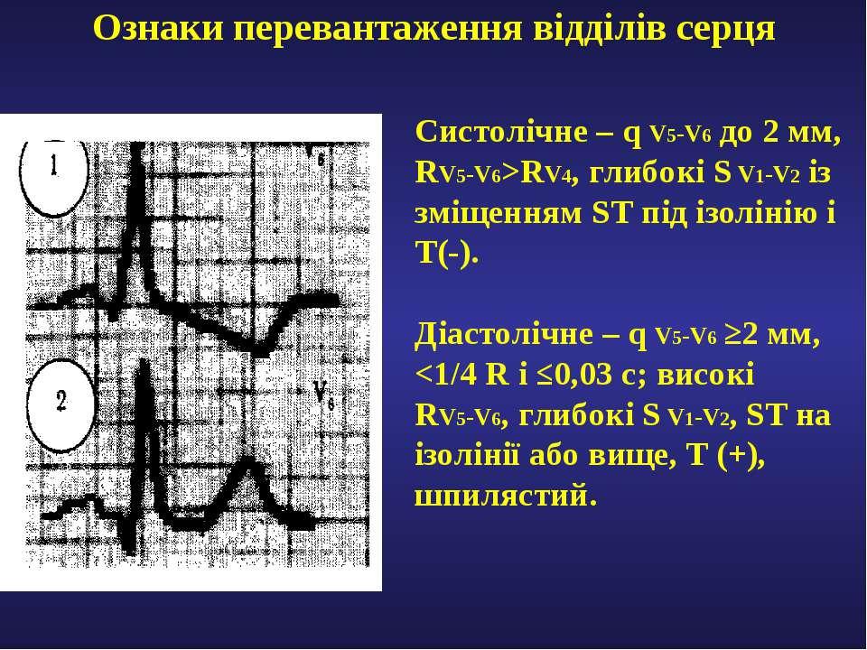 Ознаки перевантаження відділів серця Систолічне – q V5-V6 до 2 мм, RV5-V6>RV4...