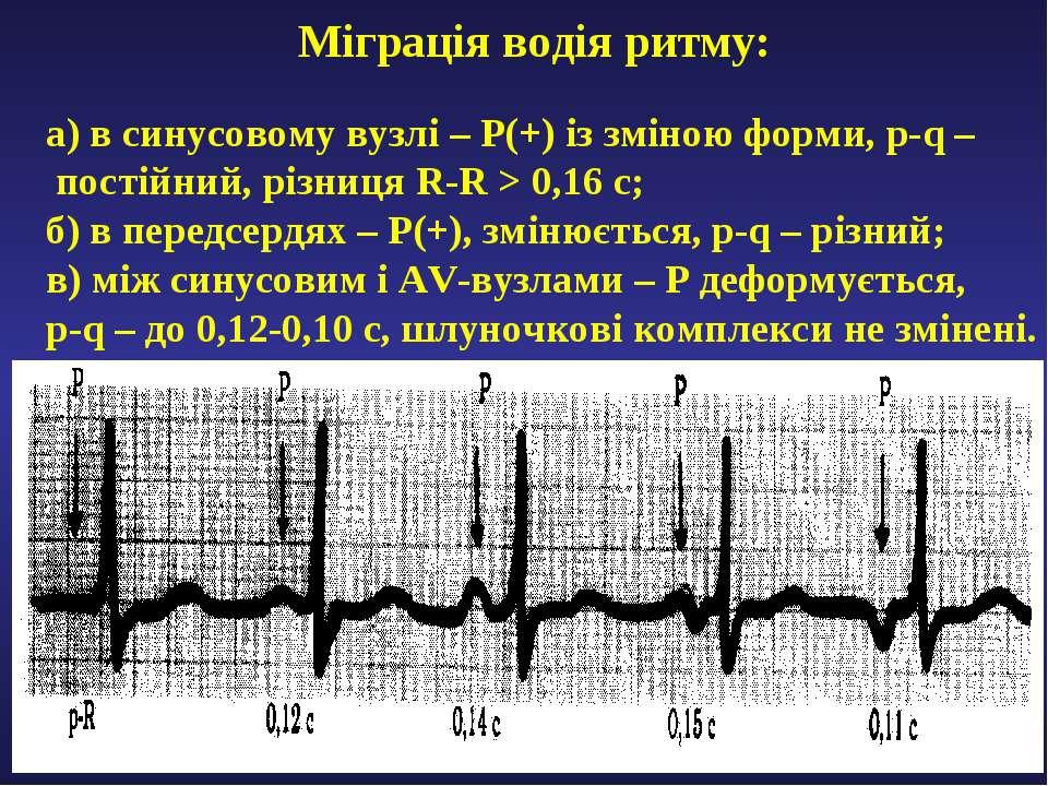 Міграція водія ритму: а) в синусовому вузлі – Р(+) із зміною форми, р-q – пос...