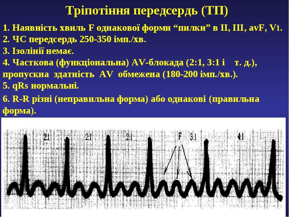 """Тріпотіння передсердь (ТП) 1. Наявність хвиль F однакової форми """"пилки"""" в ІІ,..."""